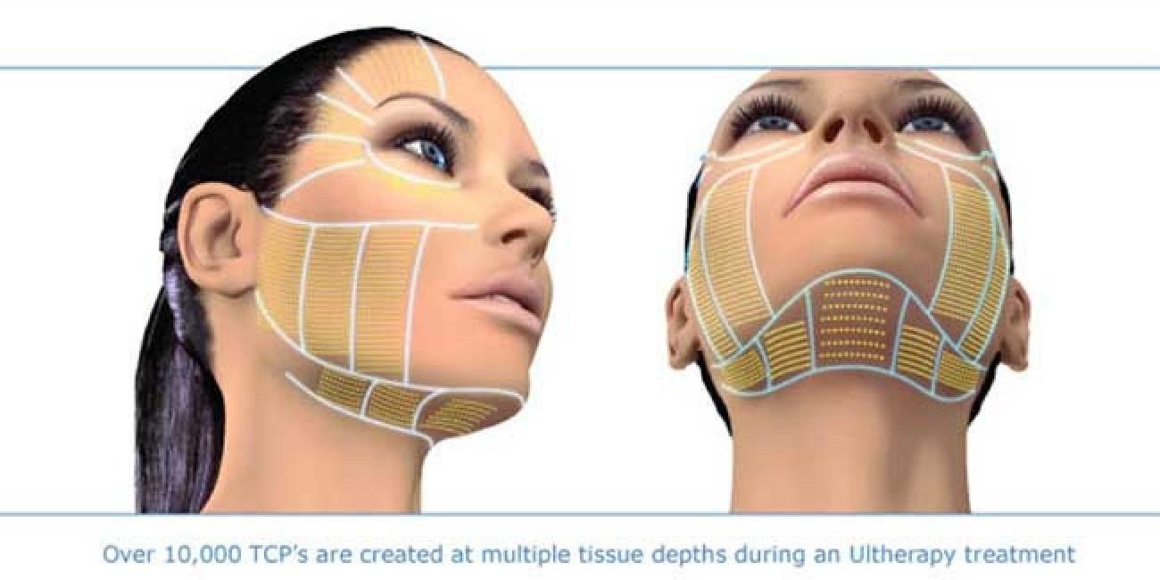 Ameliyatsız Yüz Germe / Ultherapy